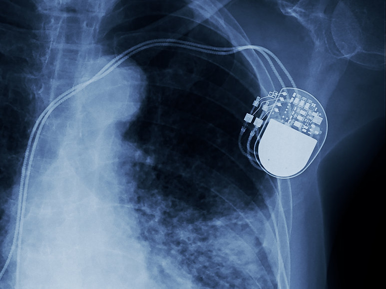 x-ray image of permanent pacemaker impla