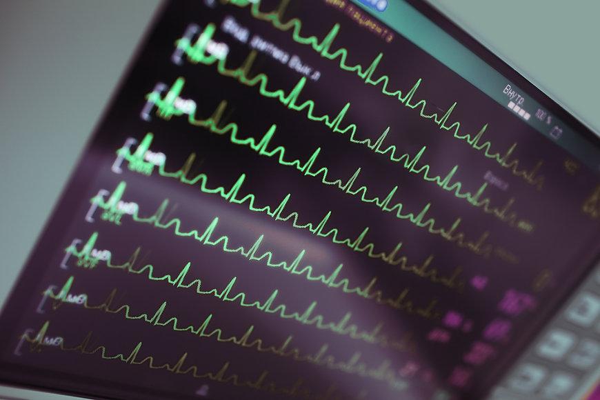 Cardiac monitoring in intensive care..jp