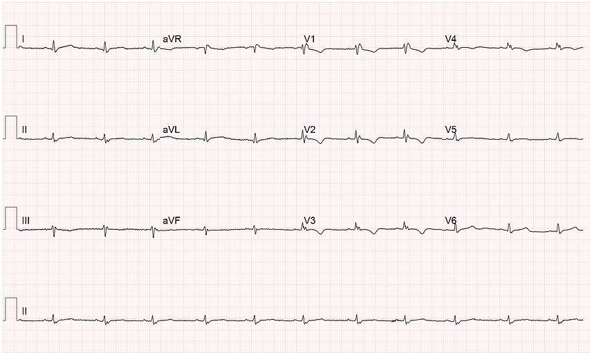მარჯვენა პარკუჭის არითმოგენური დისპლაზიის მქონე პაციენტის ეკგ