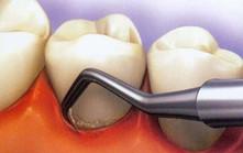 Зубной камень. Причины появления, лечение и профилактика.