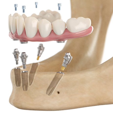 iMod 4 - Immediate Load Conversion Prosthesis for the Edentulous Patient