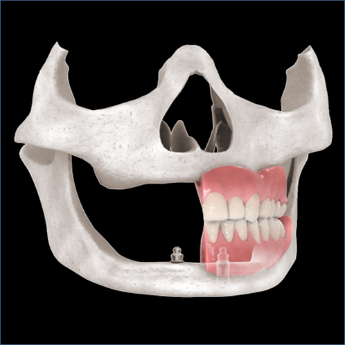 iMod 3 - Implant Supported and Retained Overdentures - Surgery and Restoration