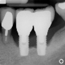 iMod 5 - Diagnosis and Treatment of Peri-Implantitis