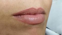 Dokk11 Natuurlijke lip contour