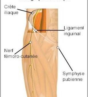 Les Méralgies Paresthésiques, un problème souvent traité en Ostéopathie