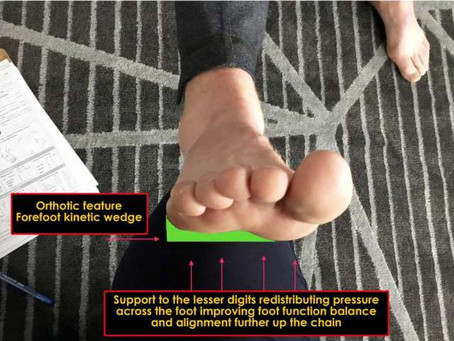 Science in Sport: The Sport Orthotic