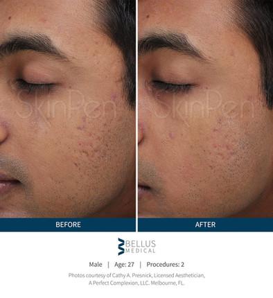 SkinPen Bilder vorher/ nachher