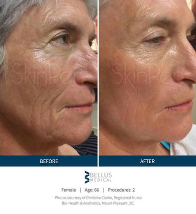 Skin-Pen-wrinkles-face.
