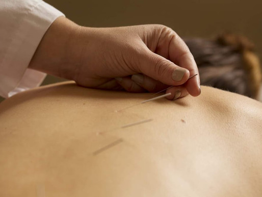 Acupuncture for Chronic Pelvic Pain Relief