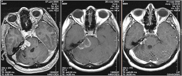 Постлучевые изменеия невриномы посл Гамма-ножа