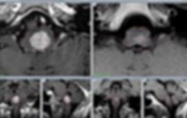 результаты радиохирургии метастазов Гамма-ножом