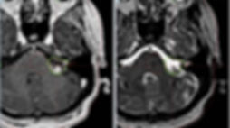 Невринома лицевого нерва