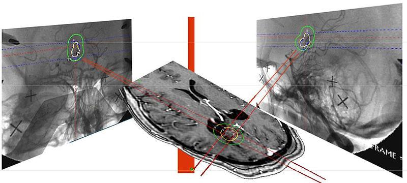 Совмещение изображений МРТ и ангиографии при планировании радиохирургии аретрио-венозной мальформации на Гамма-ноже