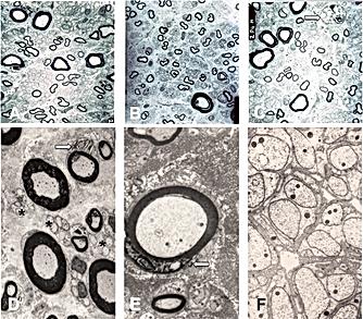 структурные изменения в корешеке тройничного нерва при нейро-васкулярном конфликте