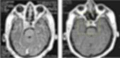 Уменьшение уменьшение размеров и нормализация гормональной активности аденомы гипофиза после Гамма-нож