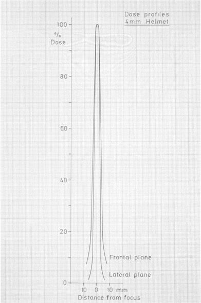 Пример безопасного падения дозы на Гамма-ноже