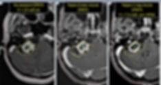 Уменьшение кистозной вестибулярной шванномы после Гамма-ножа