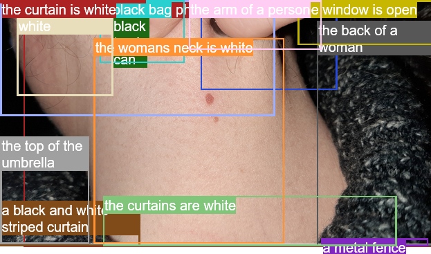 the womans neck is white oh! the back of a woman the top of the umbrella a metal fence the arm of a person the curtains are white