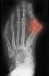 Hallux Valgus røntgen