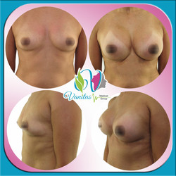 Brest Augmentation with Implants