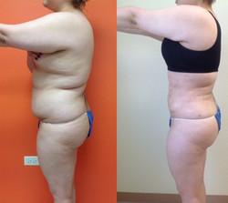 Liposuction Surgery