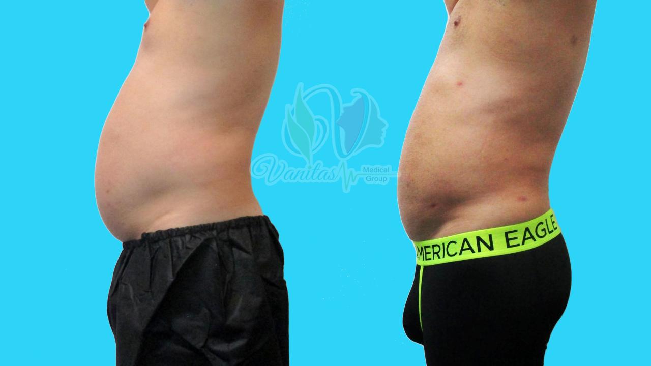Vanitas Before&After