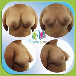 Brast Lift with No Implants