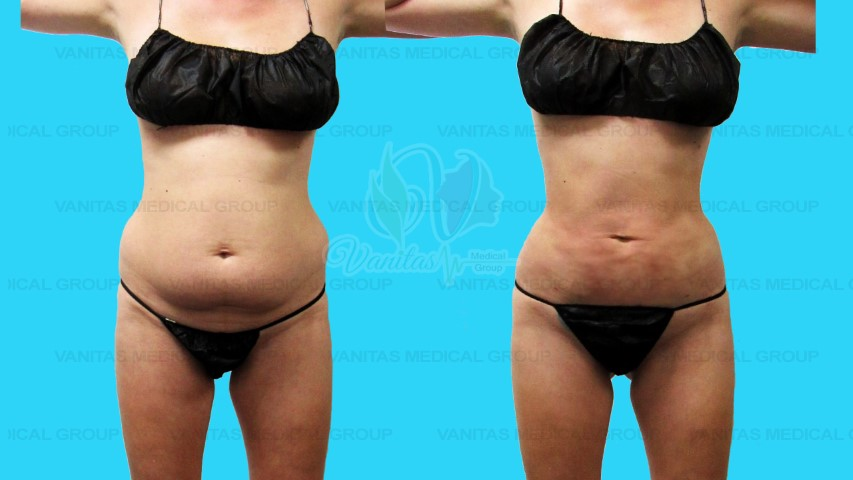 Liposuction of Core