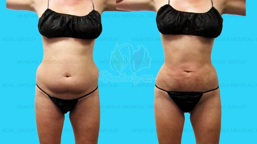 Liposuction of Core