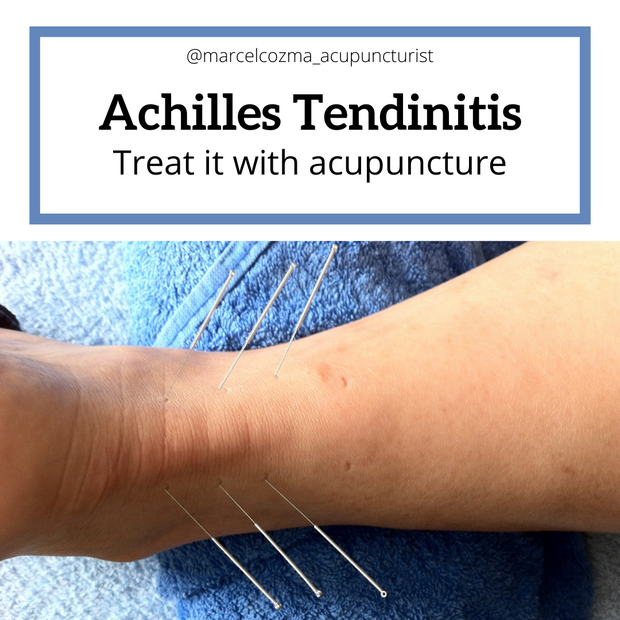 Can you treat Achilles tendinitis with acupuncture?