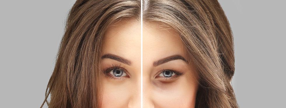 Lower eyelid blepharoplasty.Upper  bleph