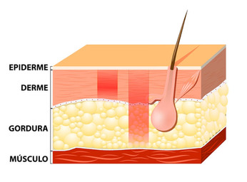 Camadas da Pele - Dra. Larissa Oliveira - Microagulhamento 01