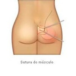sutura do musculo