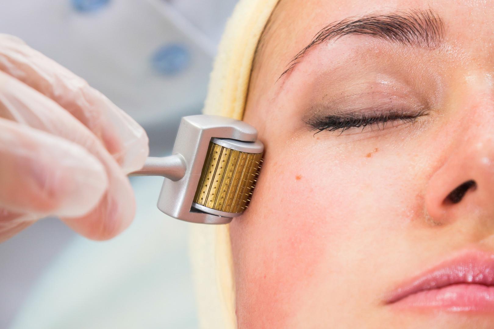 Microagulhamento - Dra. Larissa Oliveira
