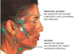 ritidoplastia-cicatriz-incisoes-300x300_