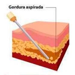 aplicação da gordura no local necessitado