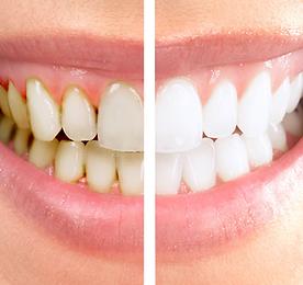 Профессиональная чистка зубов_1.png