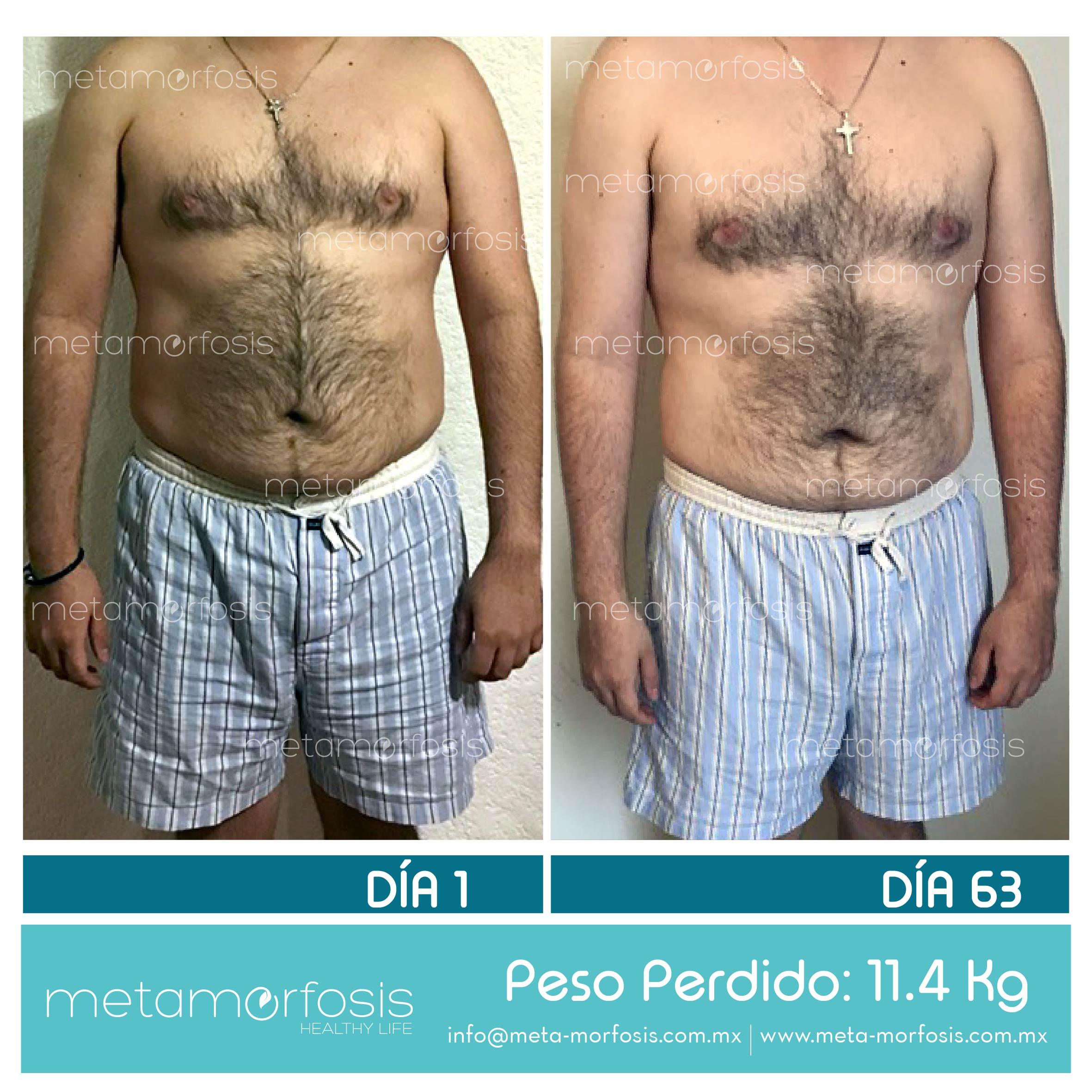 #MiMetamorfosis