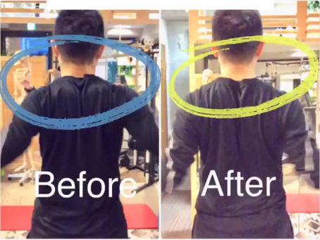 肩甲骨の安定と首のコリ