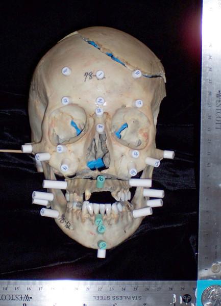 Badly damaged skull
