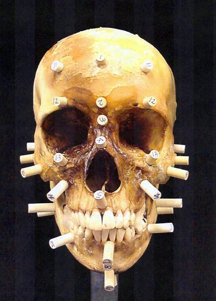 Prepping skull of mullato female