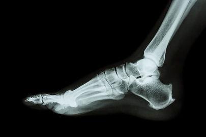 Foot-Xray-1024x683.jpg