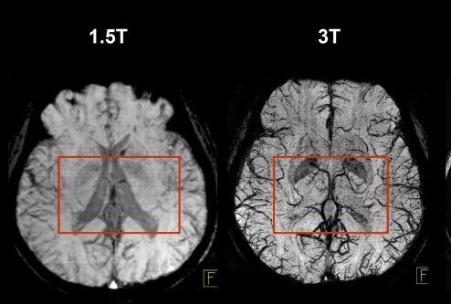 3T-vs-1.5-MRI.png