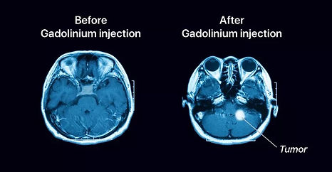 Gadolinium-Injection-compressed-2.jpg