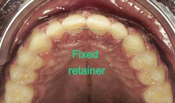 Fixed retainer behind the teeth in Arlington VA