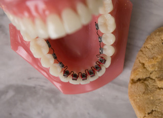 LINGUAL BRACES: The Hidden Secret to a Beautiful Smile
