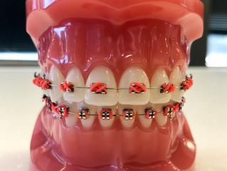 Trick or Treat: What candies are safe to eat with braces?