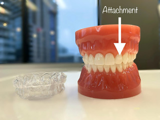 The Ins and Outs of Invisalign