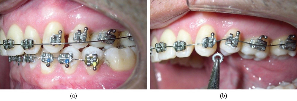 Braces colors silver at VCO Orthodontics