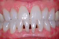 Why do I have black triangles or small spaces in between my teeth?